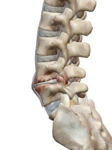 背骨とヘルニア